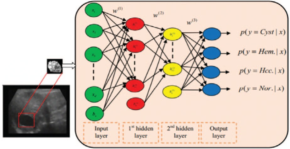 Схематическое изображение процесса глубокого обучения для задачи классификации
