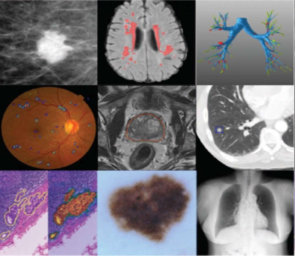 Примеры использования сетей глубокого обучения для сегментации и обнаружения патологии в различных методах диагностики