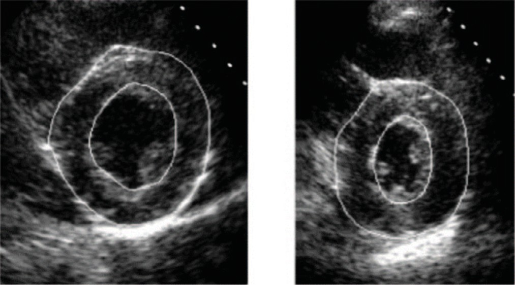 Сегментация эпикарда и миокарда сердца